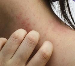 Artikelgebend sind Tipps gegen den Juckreiz bei Neurodermitis.