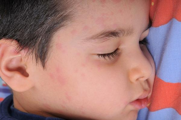 Artikelgebend sind Behandlungsmöglichkeiten der Nesselsucht bei Kindern.